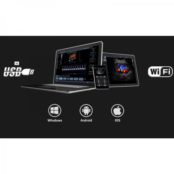 mobiles Ultraschallgerät mit App für das Handy