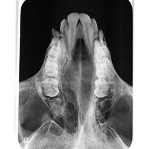 Folie, dentales Speicherfoliengeräte